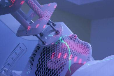Trattamento radioterapico rivoluzionario a Torino