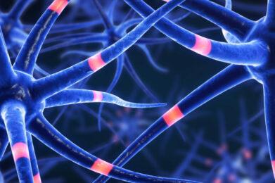 Malattie neuronali: scoperto ruolo del gene KDM5C