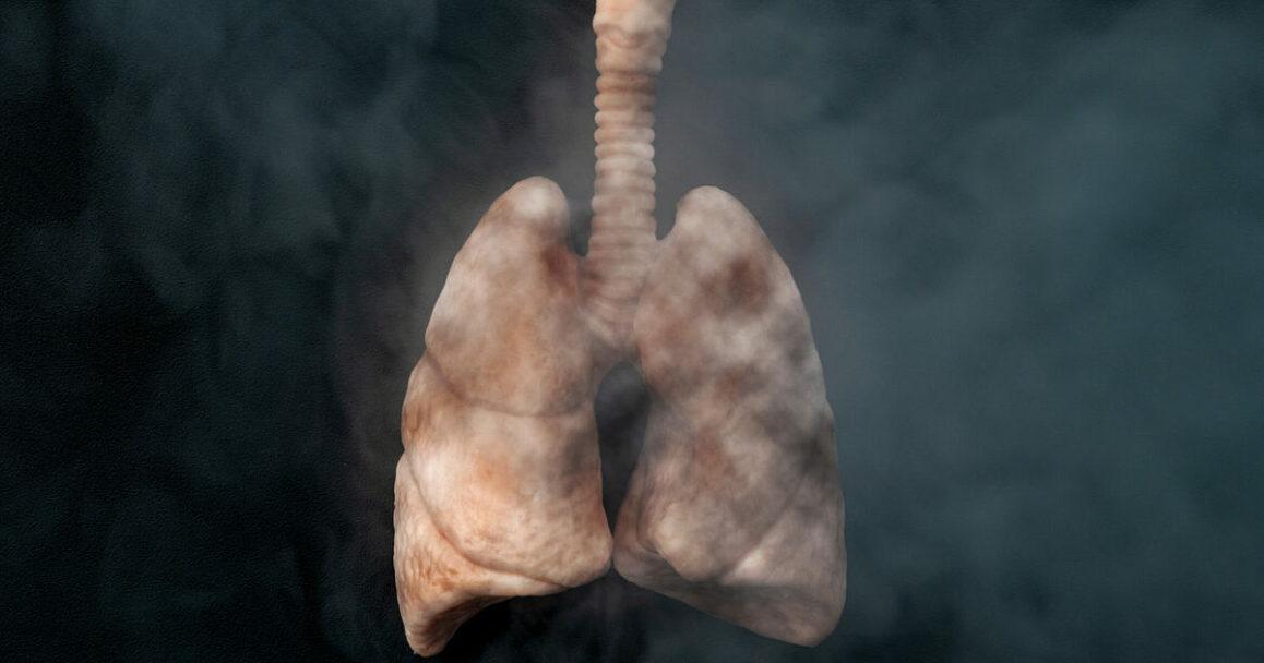 Danni al polmone