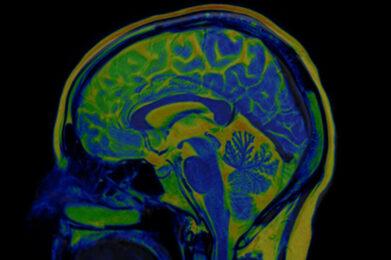 """Tumori neuroendocrini: """"Teragnostica la nuova arma a difesa dei pazienti"""""""