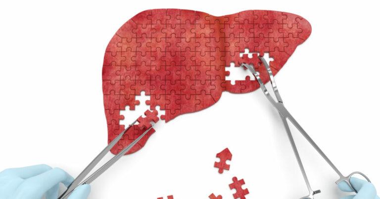 Cirrosi epatica: Una patologia che conta circa 20.000 decessi l'anno